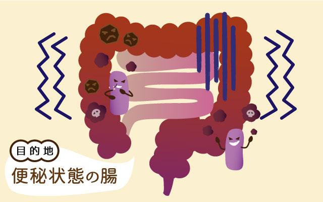目的地:便秘状態の腸のイラスト